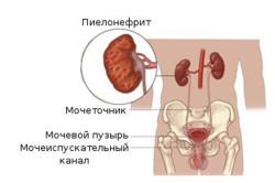 Боль в правом боку внизу живота у женщин при движении при мочеиспускании thumbnail