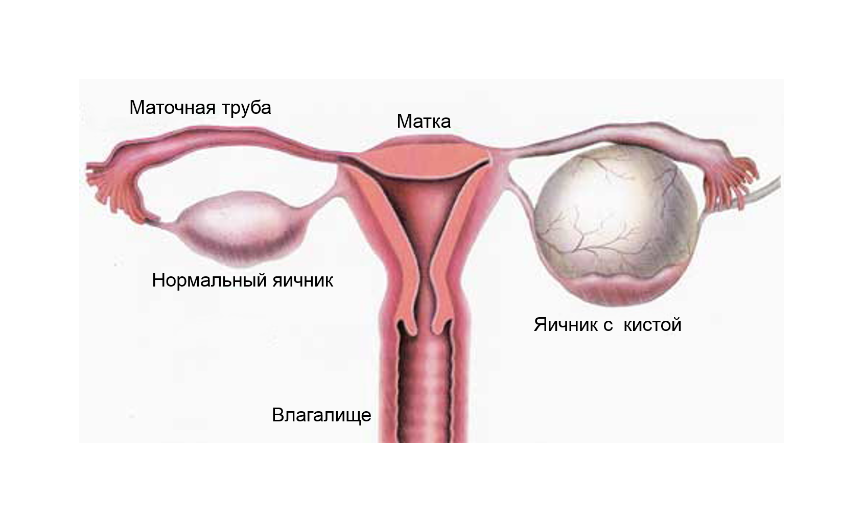 Выделение крови у женщин после полового акта: причины