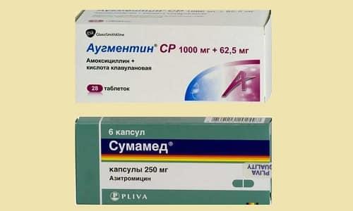 Аугментин и Сумамед - это антибиотики, относящиеся к разным группам, но их часто назначают для проведения терапии сходных заболеваний